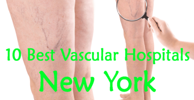 best vascular Surgeon in nyc