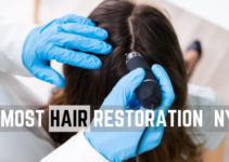 best hair restoration in nyc